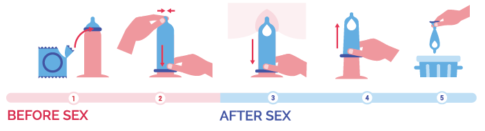 5 illustrated steps for how to use a male condom