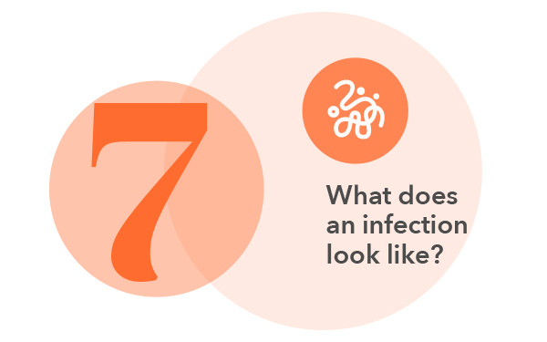 What does an infection look like?