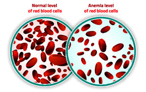 comparison of normal level of red blood cells versus anemia level of red blood cells